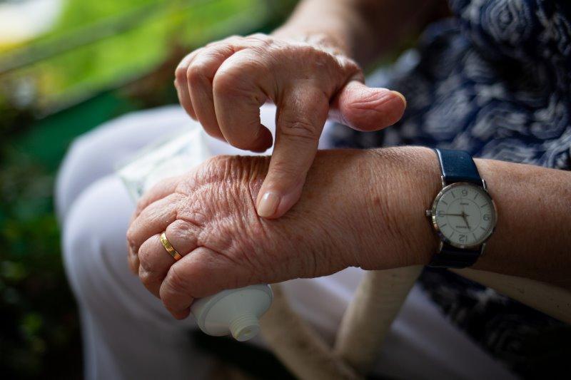 Gelenkschmerzen bei Arthrose und Rheuma